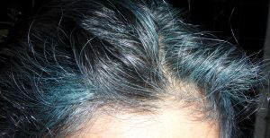 Hairline Gray Hair Gone Blue with Indigo Hair Dye