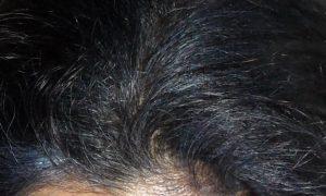 Indigo Blue hair Colour in White Hair